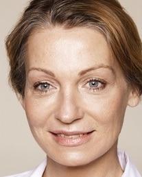 Na - filler behandeling neuslippenplooi lippen ogen jukbeenderen wangen